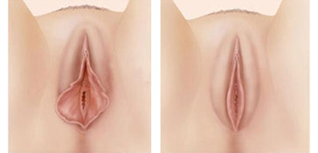 Cosmetoginecología