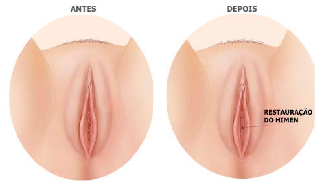 Ginestética: cosmetoginecoloda, labioplastia, lifting labios mayores, punto g, rejuvenecimiento vaginal