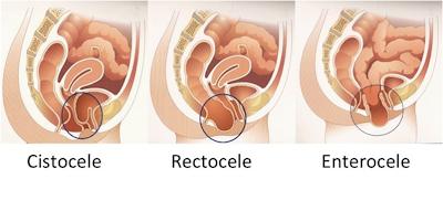 Ginestética: uroginecología, urología, propaso, incontinencia urinaria.